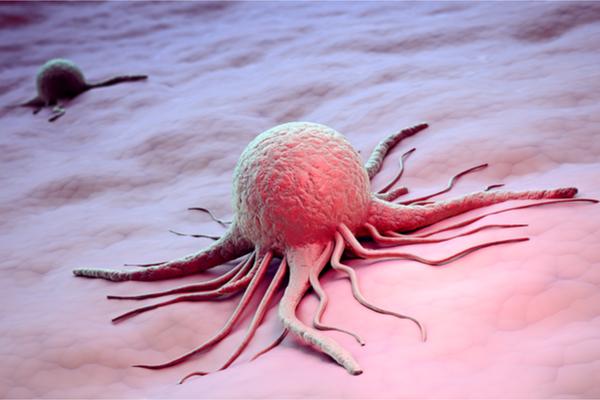 Cellula cancro